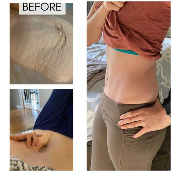 Diastasis Recti Surgery Cost Before and after
